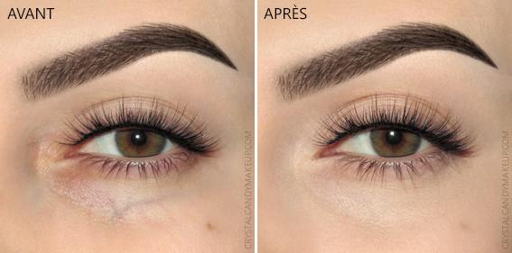 Anti-cernes Liquide Conceal Define Makeup Revolution Avant Apres