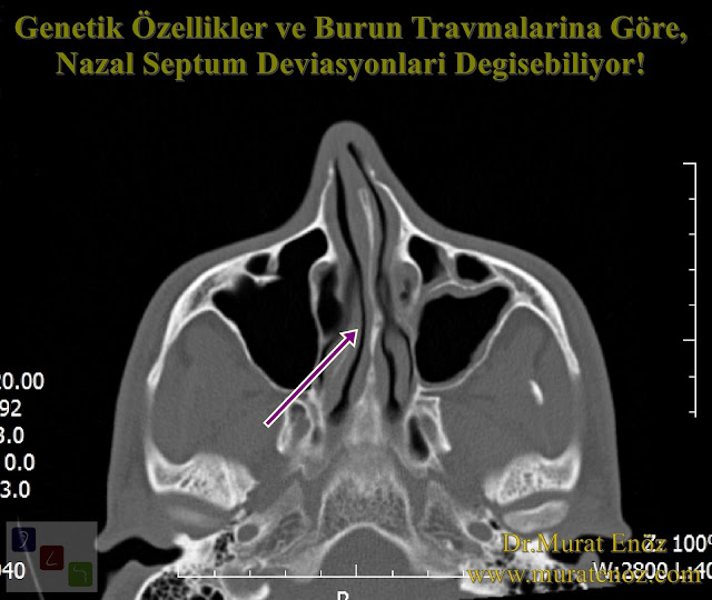 Nazal Septum Deviasyonu  Çeşitleri - Nazal Septum Deviasyonu  Animasyonu - Kaudal Septum Deviasyonu - Anterior Septal Dislokasyon - Kaudal Septoplasti - Kaudal Septum Deviasyonu Tedavisi - Septal Spur Formasyonu - Nazal Septal Spur - Burunda Kemik Spur - Septal Spur Belirtileri - Septal Spur Tedavisi - Nazal Septum Deviasyonu  Tedavisi - Deviasyon Ameliyatı Nasıl Yapılır? - Septoplasti Ameliyatı - SMR Ameliyatı