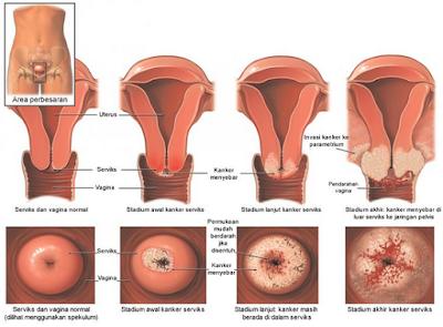 √ Informasi Kanker Serviks ⭐ Perawatan Wanita ✅