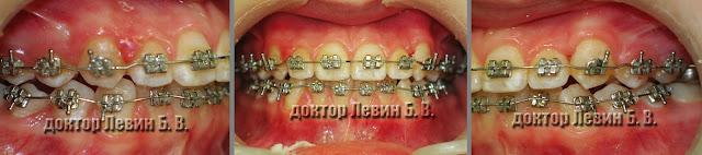 Три фото зубов характеризующие прикус пациента на 12 месяце лечения