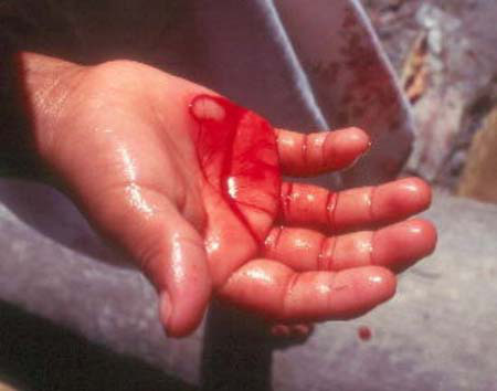 Resultado de imagem para sangue da mão