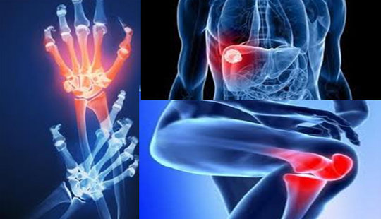 HEAL YOUR BONES AND JOINTS WITH THE HELP OF ONLY ONE INGREDIENT: YOU'LL GET RID OF THE PAIN IN 7 DAYS