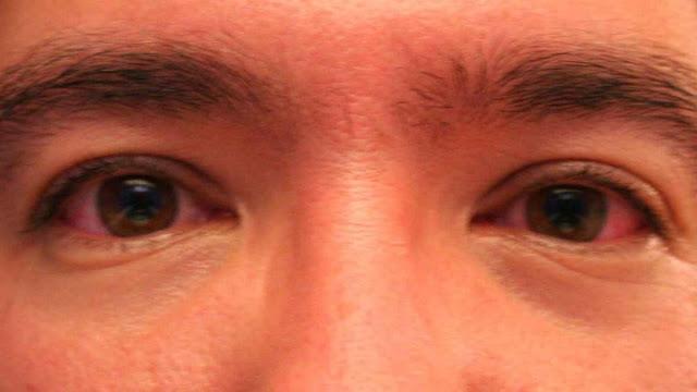 Mata Merah Karena Terlalu Lama di Depan Komputer ? Coba Solusi Berikut Ini Untuk Mengtasinya .