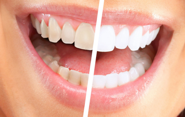 How Quickly Have Dazzling White Teeth Whitening At Home