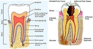 Bahaya Akibat Gigi Berlubang Bagi Kesehatan