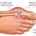 गठिया रोग के सरल उपचार - Gathiya rog treatment in hindi