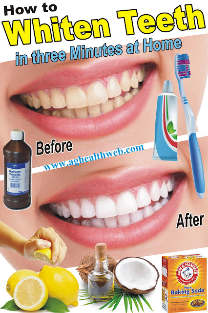 How To Whiten Teeth With Baking Soda And Hydrogen Peroxide Whiten