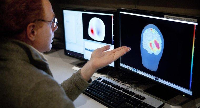 ¿Qué sucede si se daña la corteza cerebral?