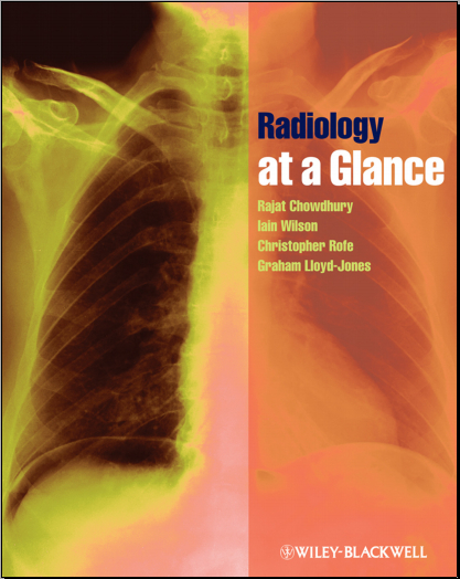 Radiology at a Glance - Chowdhury, Rajat, Wilson, Iain