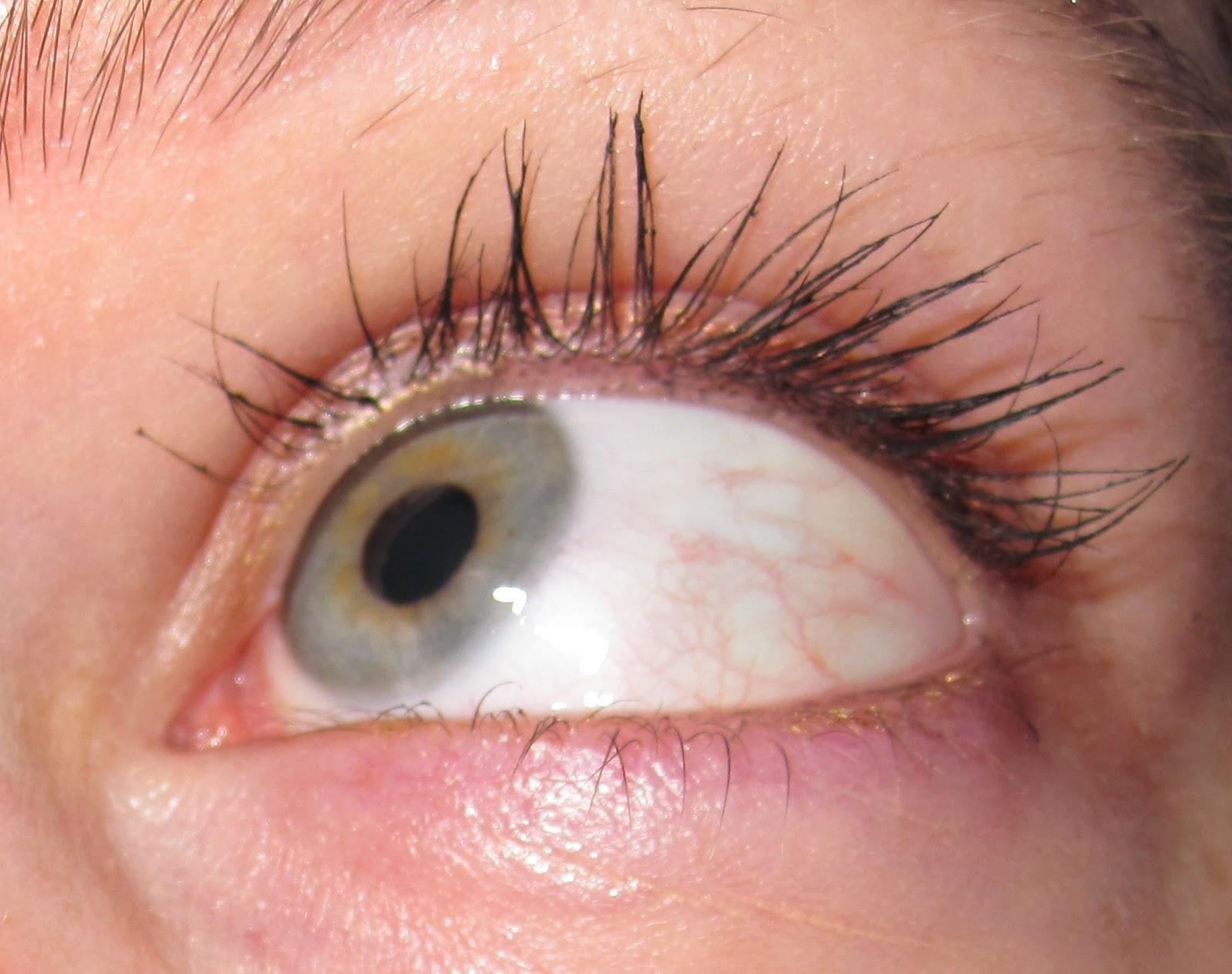 Eye Symptoms: What Are Bloodshot Eyes A Symptom Of