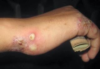 Obat Bintik Bintik Gatal Dan Berair Di Tangan Dan Sela Sela Jari