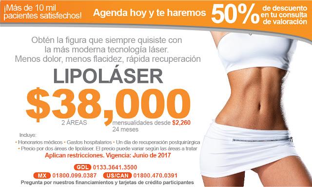 Precio Lipolaser lipoescultura laser o lipolisis Guadalajara