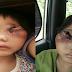 Sayunya, Tumour Semakin Merebak Keluar Dari Orbit Mata, Ini Ujian Buat Adik Arissa