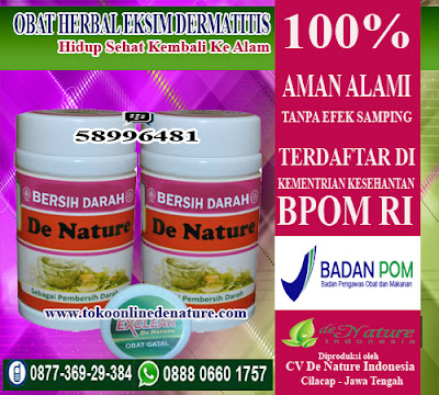 OBAT HERBAL EKSIM DERMATITIS
