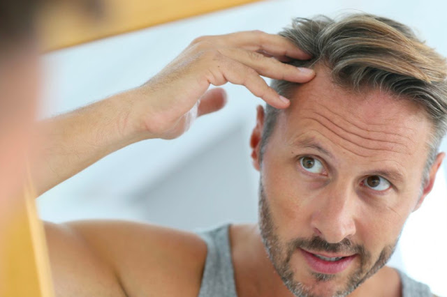 Having Hair Transplant to Look Good is not a Crime