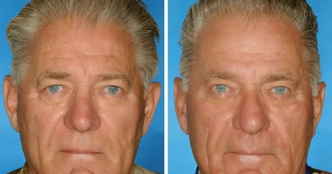 Here's What 7 Smoker VS. Non-Smoker Identical Twins Look Like After Years Of Lighting Up