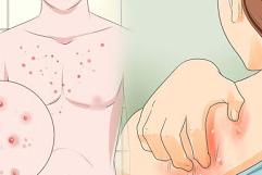 Bahaya Dari Jerawat Merah Kecil Di Tubuh Anda
