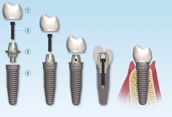 Cấy ghép răng ở đâu tốt ?