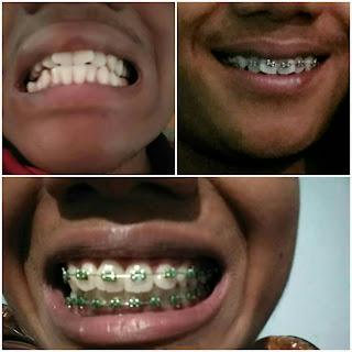 dokter gigi malang