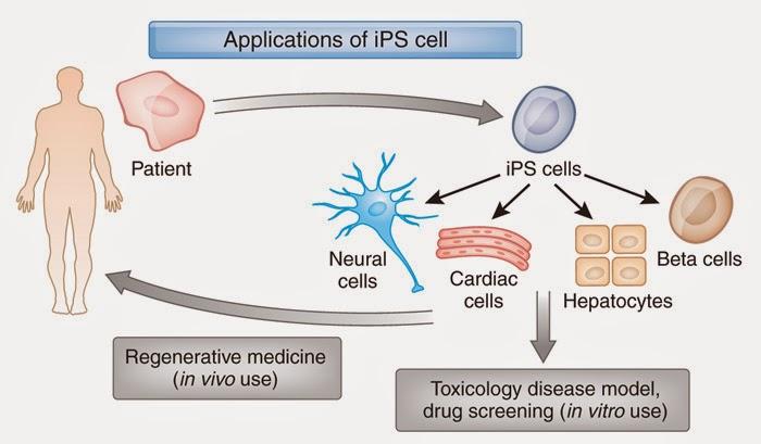 Japão Realiza Primeiro Implante Mundial de Células Reprogramadas iPS (Células-Tronco Pluripotentes)