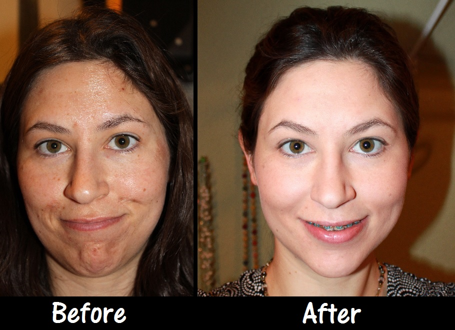 Apologise, Facial before and after photos