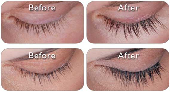 Castor Oil For Thick Long Eyelashes   Castor Oil For Eyelashes Development   Is Castor Oil Useful For Eyelashes Development?   Best Castor Oil For Eyelashes