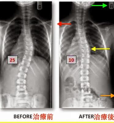 脊椎側彎, 脊椎側彎矯正, 脊椎側彎治療, 脊椎側彎 復健, 脊椎側彎矯正運動