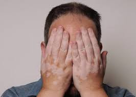 Pengobatan Tradisional Penyakit Vitiligo