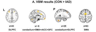 brain sex differences orbitofrontal cortex cingulate in Lexington