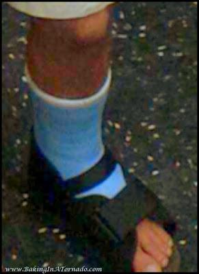 Broken leg | www.BakingInATornado.com