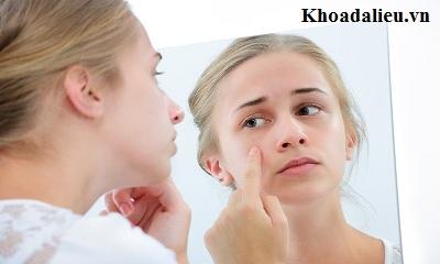 Điều trị dị ứng da mặt như thế nào cho nhanh khỏi