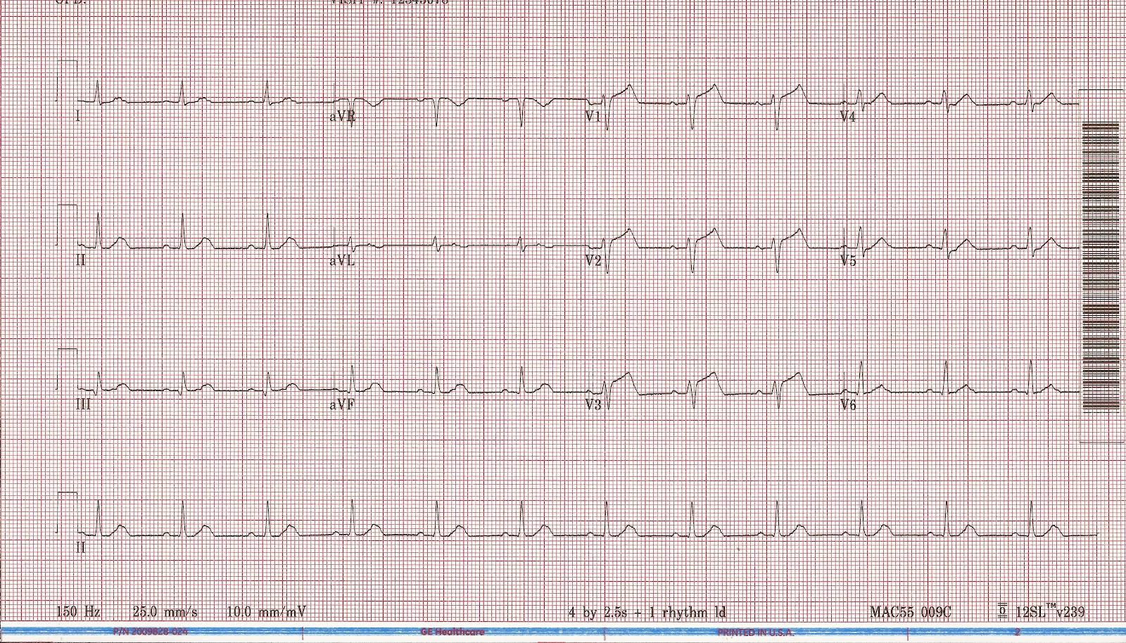 Float Nurse Megacode Unstable Ventricular Tachycardia Part 6