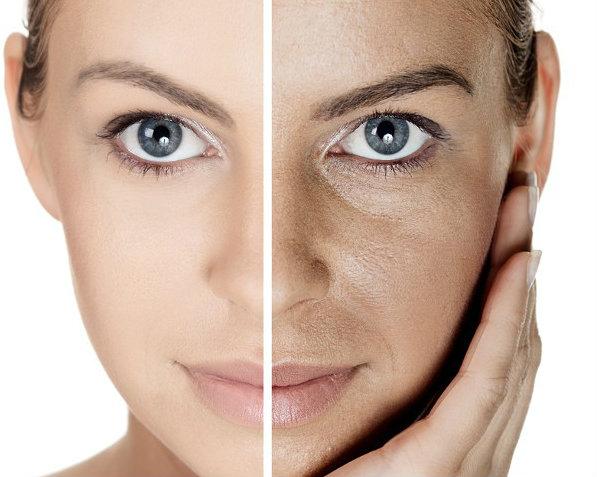 Seis creencias sobre las manchas en la piel que hay que desmontar