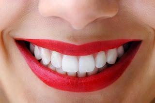 Cara Memutihkan Gigi Secara Alami dan Cepat
