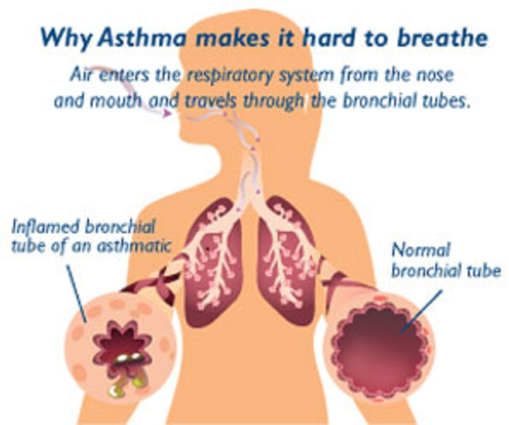 Some Simple Techniques To Control Asthma Symptoms