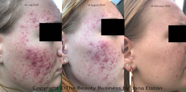 acne before and after  the beauty business jana elston