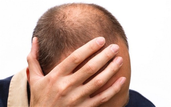 Obat Penumbuh Rambut Paling Bagus, Obat Penumbuh Rambut Botak,obat penumbuh rambut alami,Obat Rambut Botak,Obat Rambut Paling Ampuh,Penumbuh Rambut Terbaik