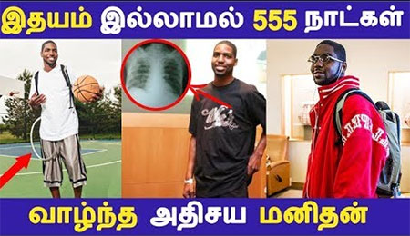 Strange Man Who Lived 555 Days without Heart