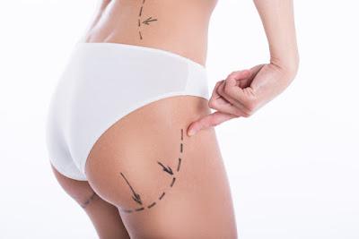 Quelles sont les complications de la chirurgie brésilienne des fesses?