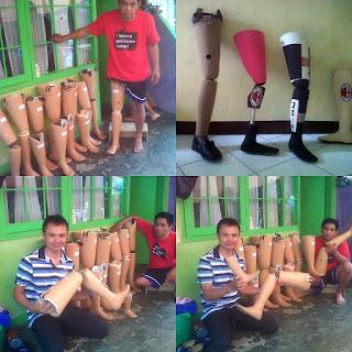Pembuat Kaki palsu di Bandung