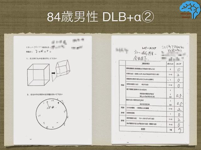 DLB患者の時計描画と透視立方体模写