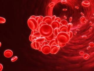 As varizes aumentam a chance do surgimento de uma trombose