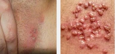 Herpes Genitalis Pada Pria