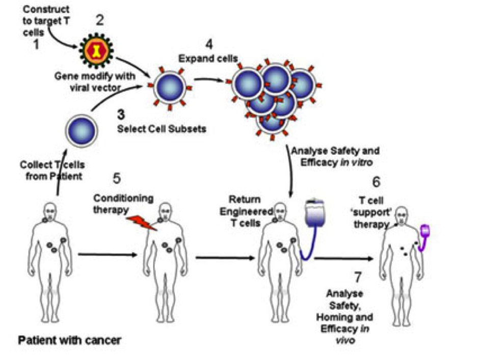 Basic Procedure Behind Gene Therapy Whereby A Patients Own T Cells Are Isolated Then Engineered To Express A Certain Protein It Didnt Express Before