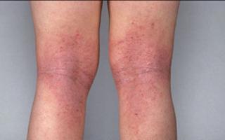 Obat penyakit eksim pada kulit