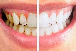 tips memutihkan gigi