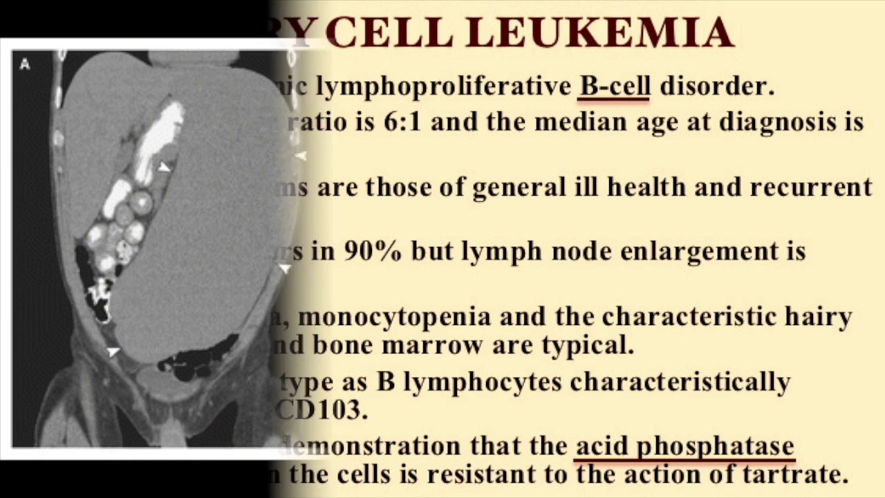 Treatment of hairy cell leukemia