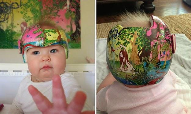 corrective helmets for infants