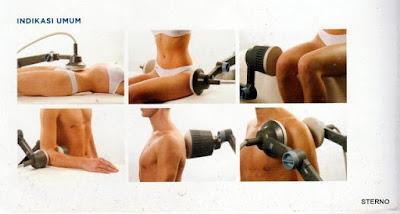 cara menggunakan SWD di tubuh manusia