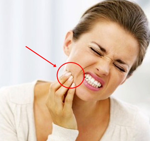 tips ampuh menghilangkan ngilu pada gigi sensitif secara alami